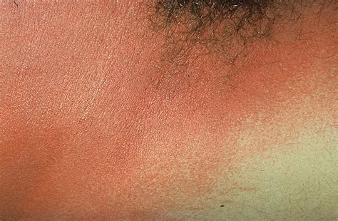 Scarlet Fever Rash in Adults Pictures – 21 Photos & Images