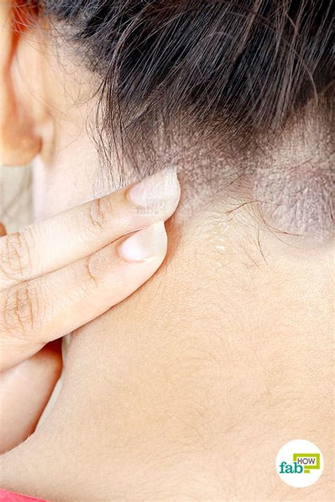 How to Get Rid of Seborrheic Dermatitis: 7 Tried and
